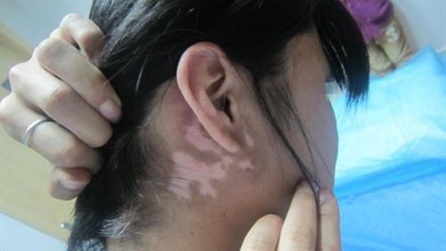 """武汉环亚白癜风医院:白斑不发也需治,入院治疗解""""白""""愁"""