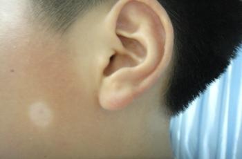 武汉科学诊断白癜风的方法