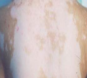 为什么有的部位的白斑会复发