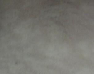 白癜风和白斑病的区别